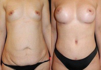 addominoplastica + mastoplastica prima e dopo