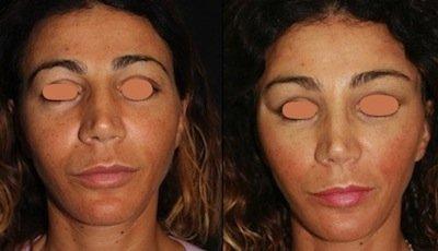 Lipofilling prima e dopo 1