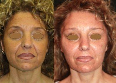 lipofilling prima e dopo 2
