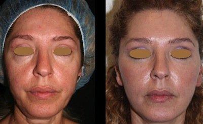 lipofilling prima e dopo 3