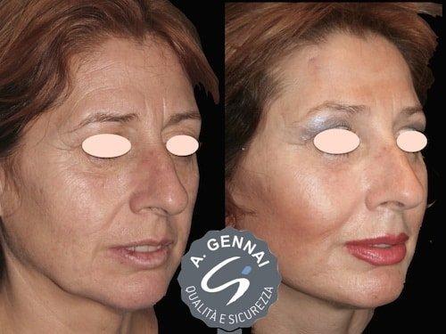 lipofilling-viso-a
