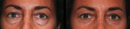 blefaroplastica inferiore prima e dopo