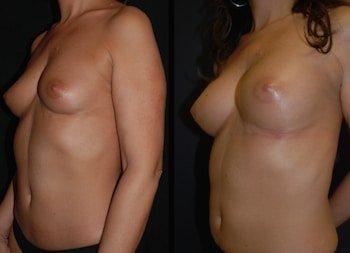 Lipofilling del seno