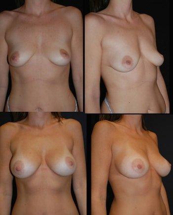 Lifting del seno con lipofilling