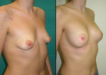 Lifting del seno con protesi