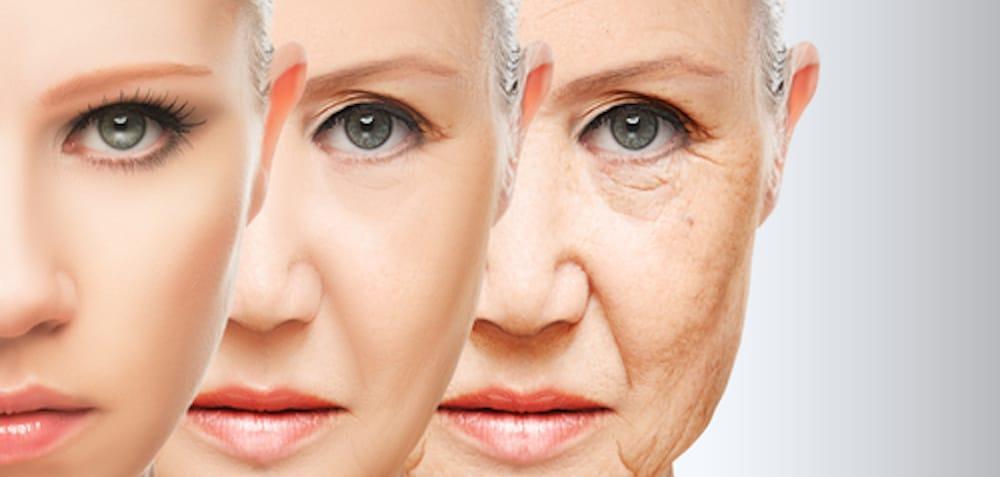 skin-aging
