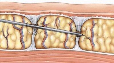 eliminare-cellulite-cellfina
