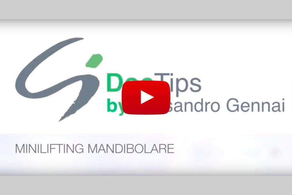 minilifting mandibolare doctips